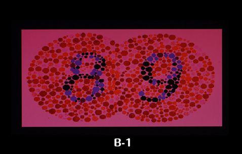 色覚特性(いわゆる色盲・色弱)チェックB1