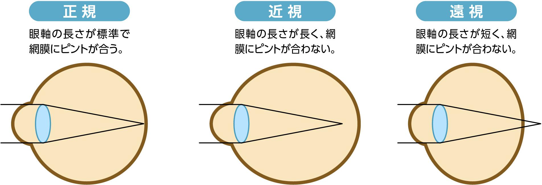 老眼による視機能低下のしくみ