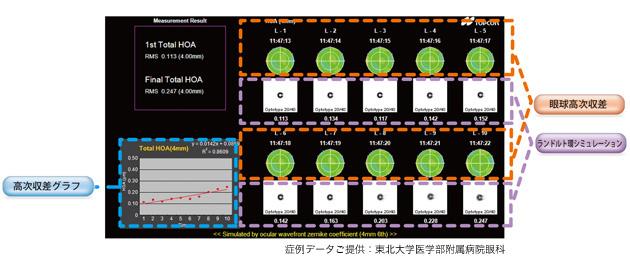 実用視力(連続測定)の評価マップイメージ